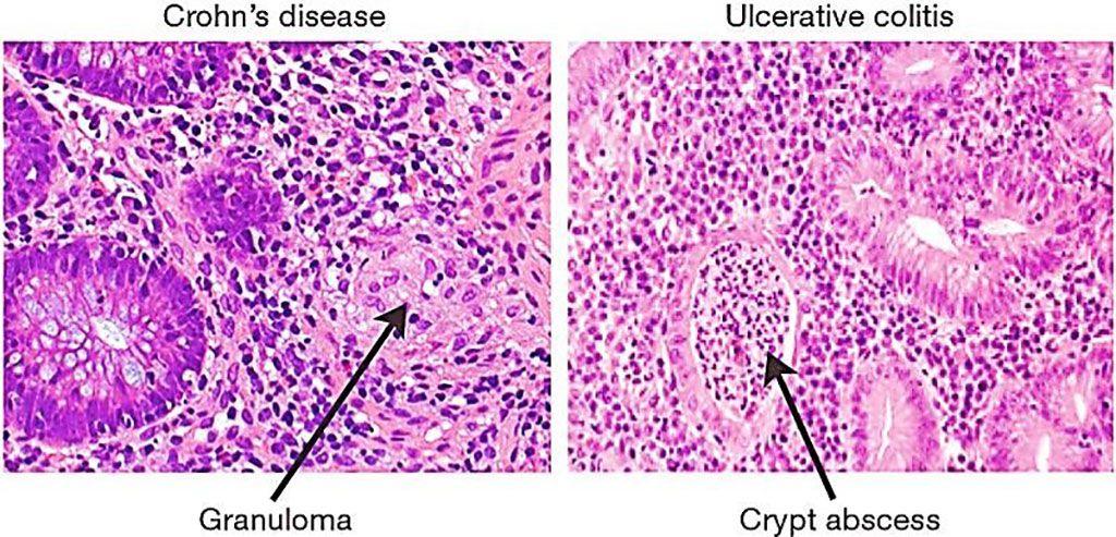 Imagen: Comparación de la histología entre la colitis ulcerativa y la enfermedad de Crohn (Fotografía cortesía de R. J. Xavier y D. K. Podolsky).