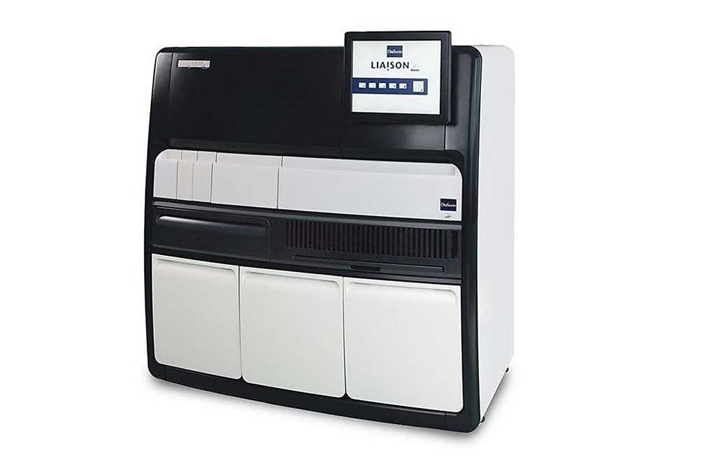 Imagen: El LIAISON XL es un analizador de quimioluminiscencia totalmente automatizado, que realiza el procesamiento completo de muestras, así como la medición y evaluación (Fotografía cortesía de Diasorin).