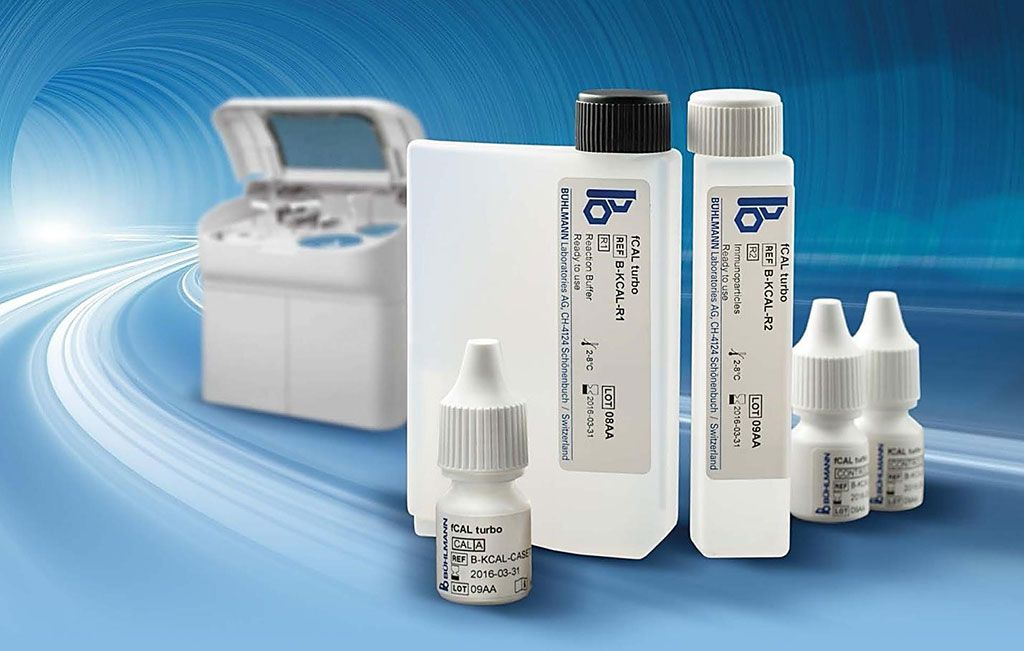 Imagen: El inmunoensayo turbidimétrico Buhlmann fCal Turbo mide la calprotectina fecal en muestras de heces (Fotografía cortesía de Buhlmann Diagnostics).