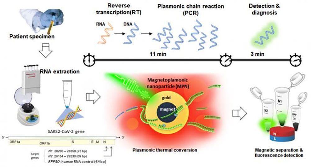 Imagen: El ARN del coronavirus se extrajo de la muestra del paciente, luego se sometió a transcripción inversa, amplificación de genes y detección a través de nanoPCR, para diagnosticar la infección por COVID-19. Para la rápida amplificación y detección de genes, se utilizaron nanopartículas magneto-plasmónicas (MPN) para facilitar el ciclo de cambio de temperatura de la RT-PCR existente a alta velocidad. Finalmente, un campo magnético separó las MPN y se detectó la señal fluorescente del ADN amplificado (Fotografía cortesía del Instituto de Ciencias Básicas, Corea)