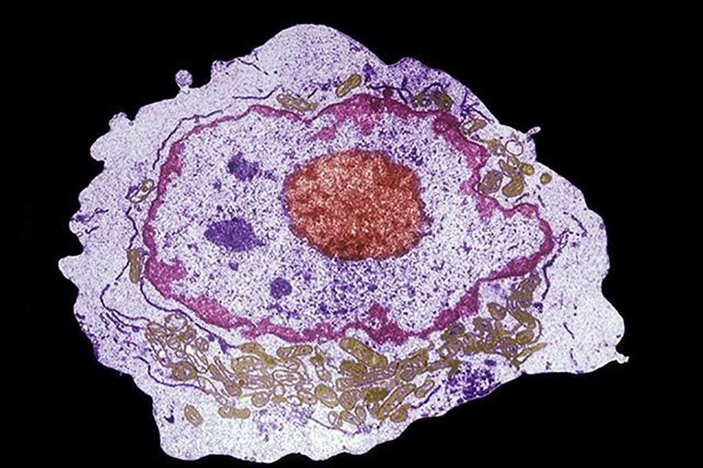 Imagen: Microfotografía electrónica de una célula madre hematopoyética que se puede obtener de sangre del cordón umbilical, médula ósea adulta y sangre periférica (Fotografía cortesía de Donald W. Fawcett, MD).
