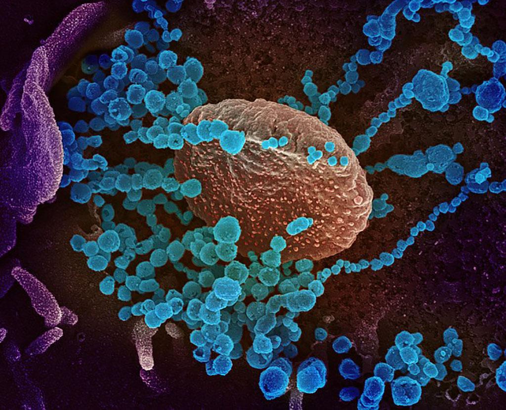 Imagen: Una imagen de microscopio electrónico de barrido del SARS-CoV-2 (objetos redondos azules) (Fotografía cortesía del NIAD)