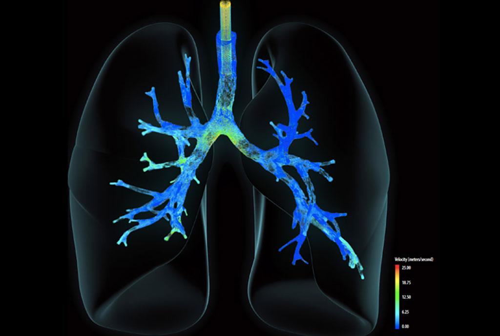 Imagen: La visualización matemática muestra la velocidad del aire que ingresa a los pulmones desde un ventilador pulsante de alta frecuencia (Fotografía cortesía del Laboratorio Nacional de Los Álamos)