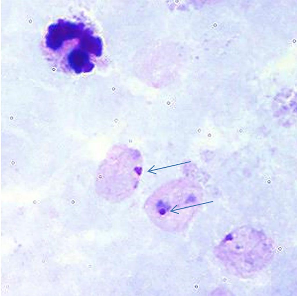 Imagen: Paludismo: frotis de sangre de gota gruesa que muestra trofozoítos anulares de Plasmodium vivax que son difíciles de detectar. Hay dos formas de anillo marcadas con flechas (Fotografía cortesía de los Centros de Control y Prevención de Enfermedades de EUA).