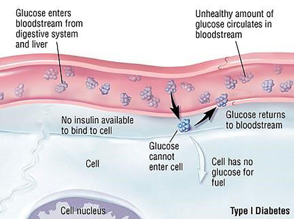 Imagen: Diagrama esquemático de la diabetes tipo 1 (DT1). La respuesta inmune a la insulina podría identificar y ayudar a tratar a las personas en riesgo de DT1 (Fotografía cortesía de la Facultad de Medicina de Harvard).