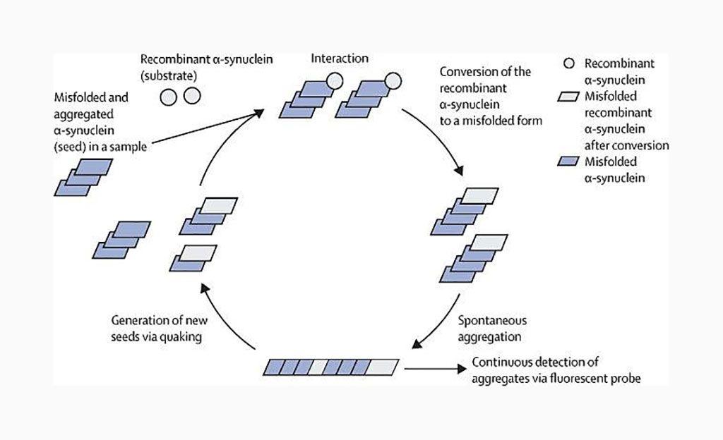 Imagen: Amplificación in vitro de α-sinucleína mal plegada mediante conversión inducida por temblores en tiempo real (Fotografía cortesía de la Universidad de Edimburgo).