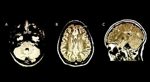 Imagen: Las flechas en las imágenes indican anormalidades en las resonancias magnéticas de los niños sin síntomas aparentes de esclerosis múltiple (Fotografía cortesía de la Universidad de Yale).