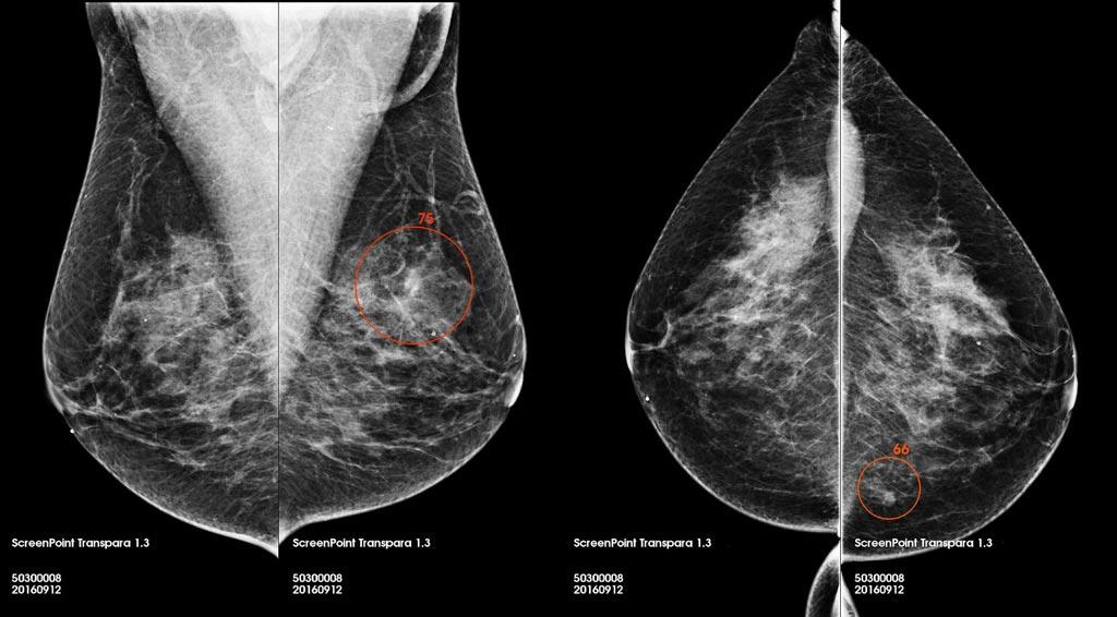 Imagen: Una captura de pantalla del software de lectura de mamografía Transpara (Fotografía cortesía de ScreenPoint Medical).