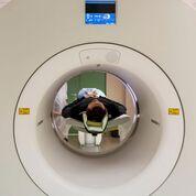 Imagen: La investigación muestra que las dosis de radiación de la TC varían ampliamente entre los países (Fotografía cortesía de Getty Images).