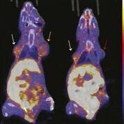 Imagen: Imágenes representativas de la captación coronal de 18F-FFNP en la TEP/TC (Fotografía cortesía de UWHealth).