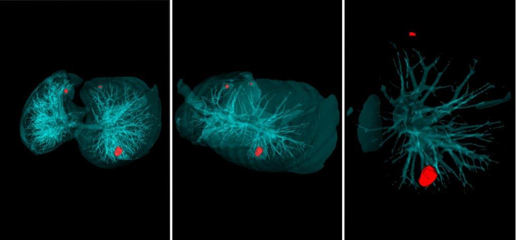 Imagen: El sistema del Doctor AIzimov analiza los resultados de la tomografía computarizada en 20 segundos (Fotografía cortesía de la Universidad Politécnica de Peter del Gran San Petersburgo).