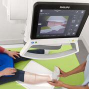 Imagen: Preparación de un examen de peroné en el sistema DigitalDiagnost C90 DR (Fotografía cortesía de Philips Healthcare).