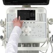 Imagen: El sistema de ultrasonido MyLab X5 (Fotografía cortesía de Esaote).