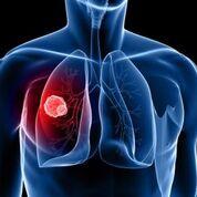Imagen: Un estudio nuevo afirma que la detección mediante TC reduce la mortalidad por cáncer de pulmón (Fotografía cortesía de Shutterstock).