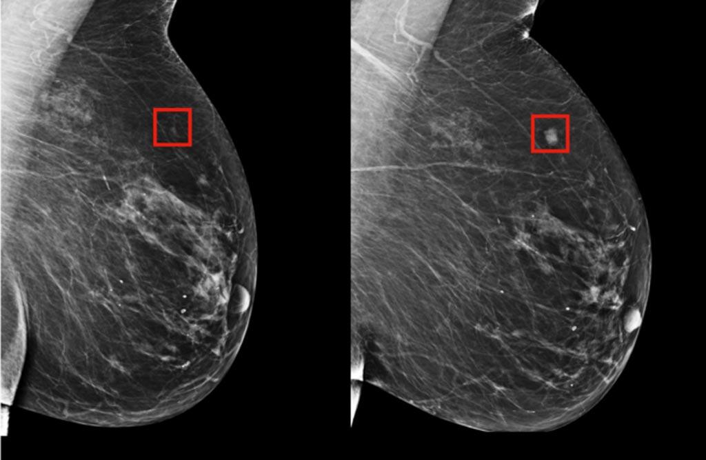 Imagen: Se espera que un método nuevo de inteligencia artificial, para detectar el cáncer de mama, supere los métodos existentes que no cumplen con sus predicciones (Fotografía cortesía del MIT).