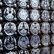 Imagen: La resonancia magnética ZTE muestra resultados similares a la tomografía computarizada (Fotografía cortesía de 123rf).
