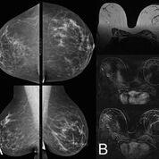 Imagen: Una mamografía (A) comparada con una resonancia magnética de la mama (B) (Fotografía cortesía de MedUni).