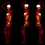 Imagen: Ahora se pueden realizar tomografías PET de todo el cuerpo en 20 segundos (Fotografía cortesía de UCD).