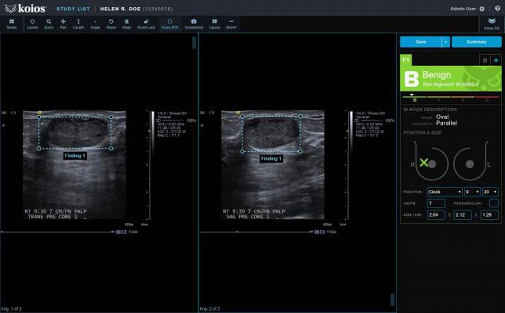 Imagen: Una captura de pantalla del software Koios DS Breast 2.0 basado en la IA (Fotografía cortesía de Koios Medical).
