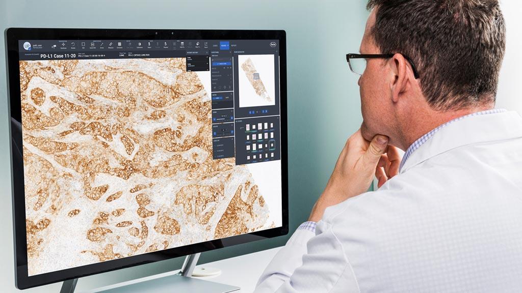 Imagen: El software empresarial uPath proporciona mejores herramientas de patología digital (Fotografía cortesía de Roche).