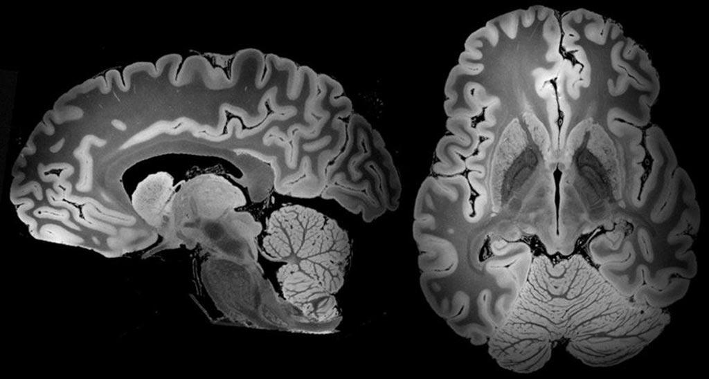 Imagen: Vistas de resonancia magnética de todo el cerebro humano (Fotografía cortesía de MGH).