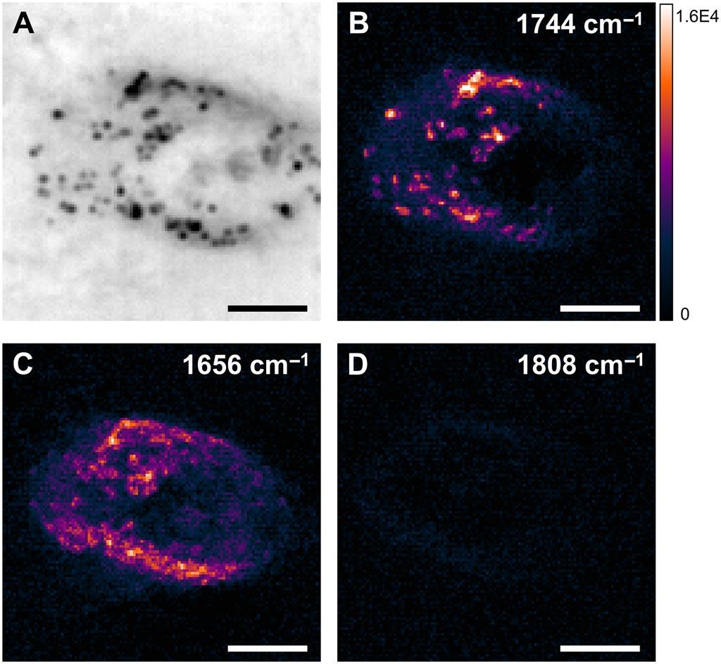 Imagen: Imagen WPS de una célula de cáncer de ovario (a), lípidos (b), proteínas (c) y fuera de resonancia (d) respectivamente (Fotografía cortesía de Ji-Xin Cheng et al).