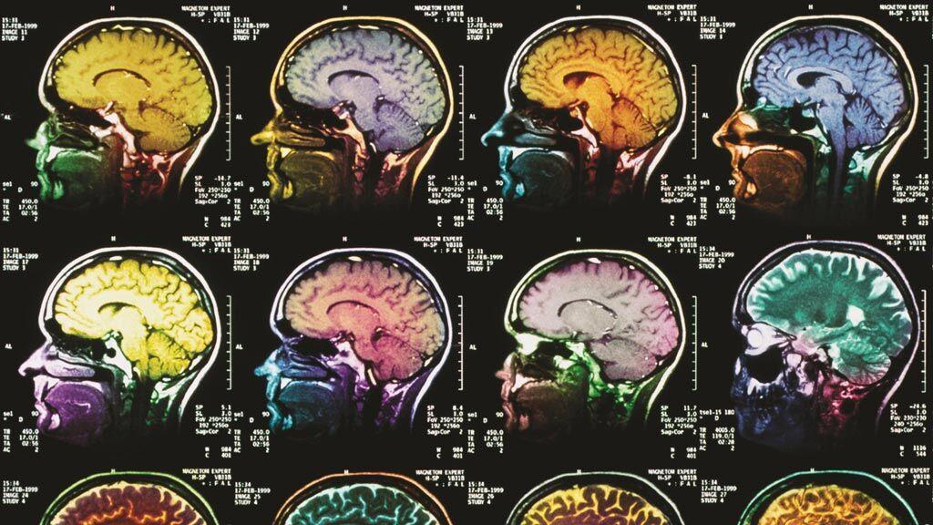 Imagen: Un agente de contraste bimodal proporciona imágenes híbridas (Fotografía cortesía de Getty Images).