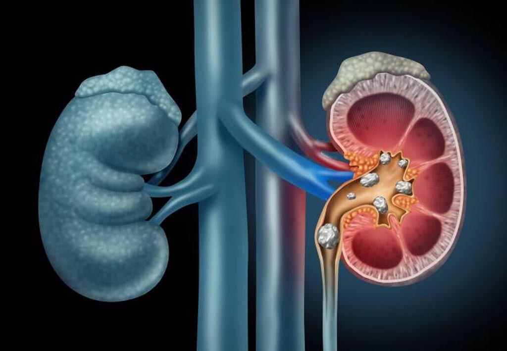 Imagen: Un estudio nuevo sugiere que a las personas que padecen cálculos renales les realizan demasiadas TC (Fotografía cortesía de Getty Images).
