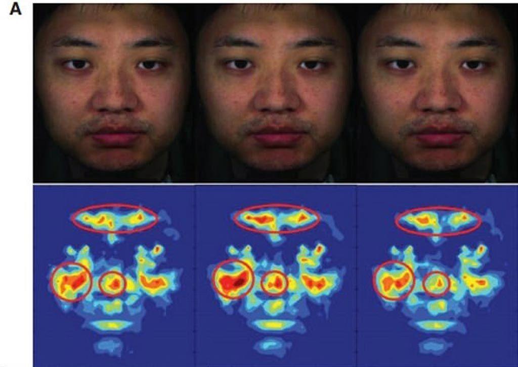 Imagen: Un estudio nuevo afirma que se pueden usar áreas específicas del rostro humano para medir ópticamente la PA (Fotografía cortesía de Kang Lee/UT).