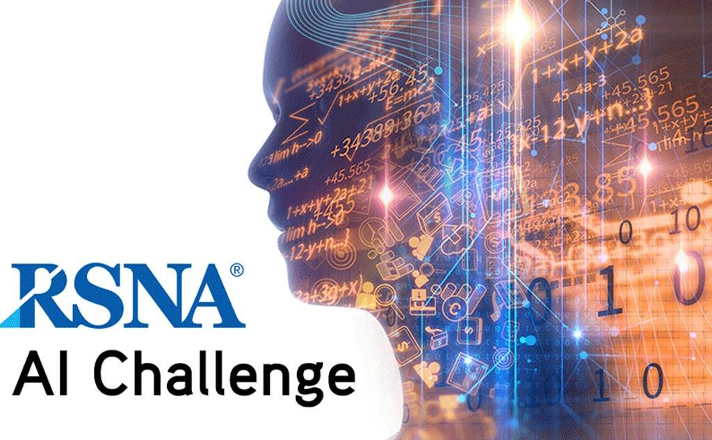 Imagen: En el RSNA de este año, los investigadores trabajarán para desarrollar algoritmos que puedan identificar y clasificar subtipos de hemorragias en las tomografías computarizadas de la cabeza (Fotografía cortesía de la RSNA).