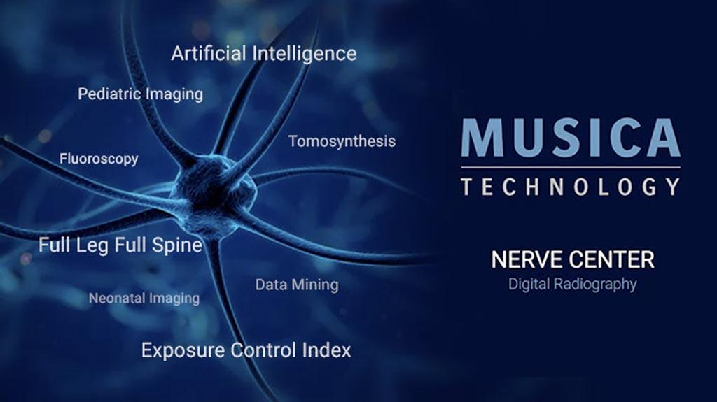 Imagen: El MUSICA Nerve Center ofrece un flujo de trabajo orientado al cliente y características potentes e innovadoras (Fotografía cortesía de Agfa HealthCare).