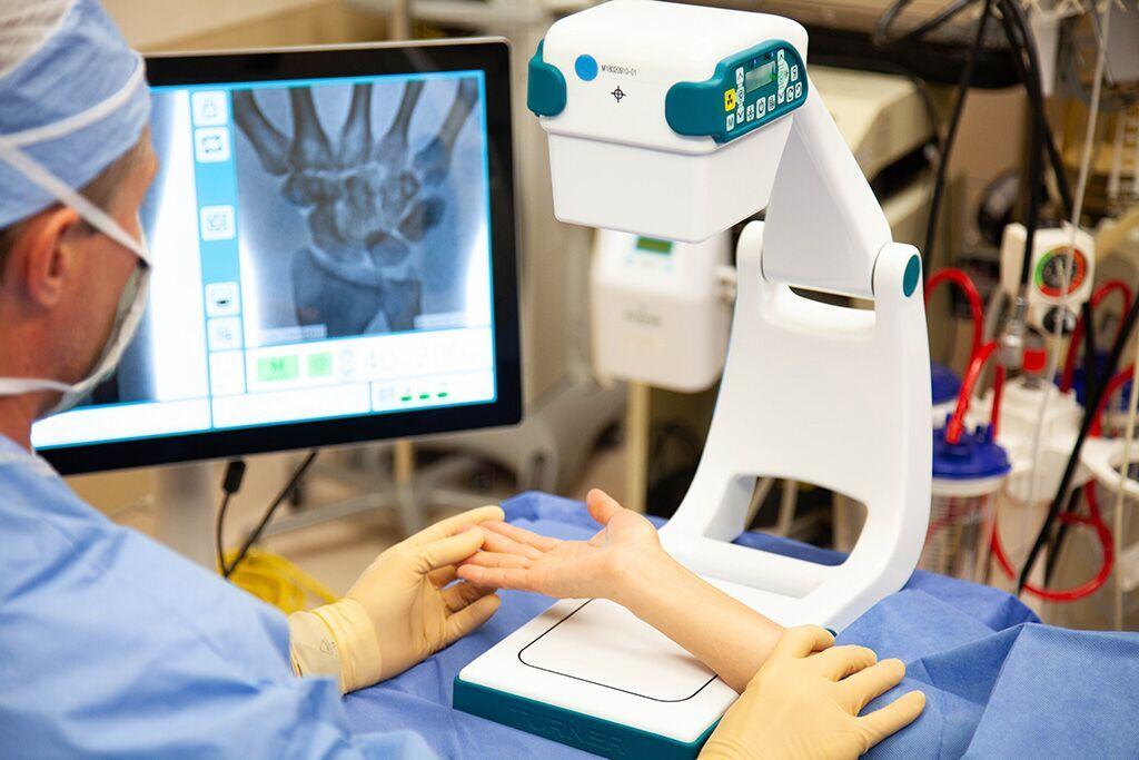 Imagen: El dispositivo portátil de imágenes de rayos X Smart con brazo en C (Fotografía cortesía de Turner Imaging Systems)
