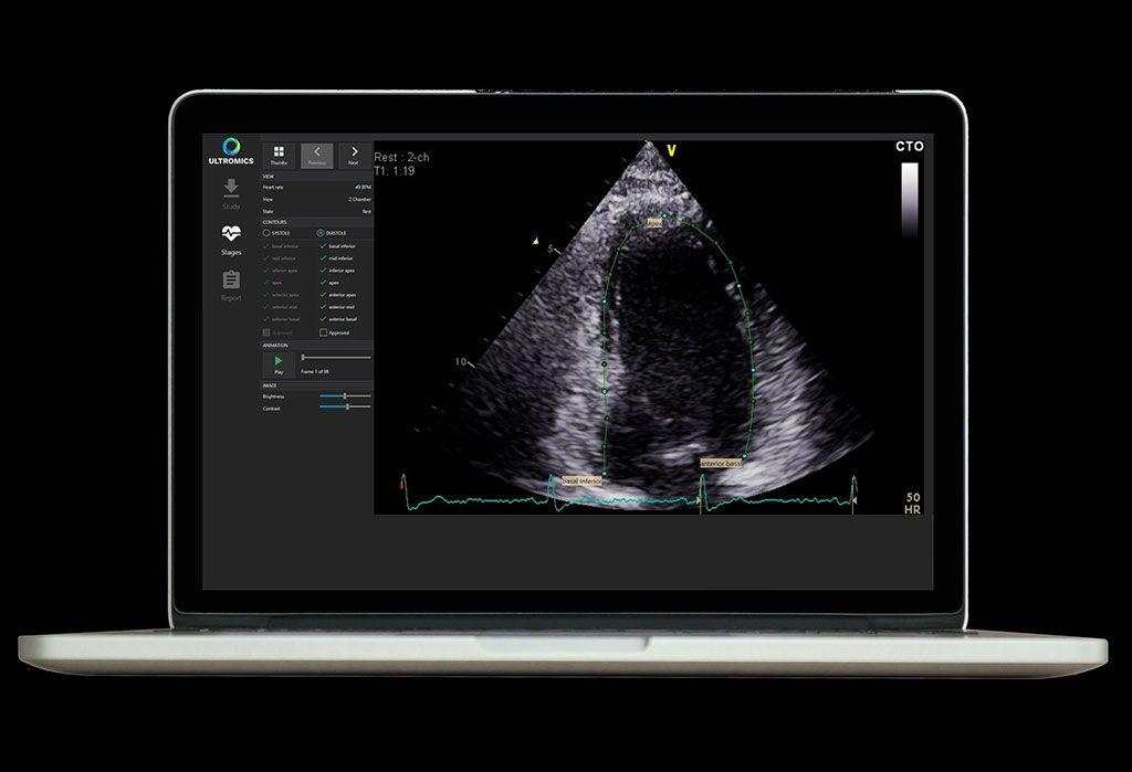 Imágenes: Contorneado automático generado por EchoGo, para el cálculo de parámetros cardíacos clave (Fotografía cortesía de Ultromics)