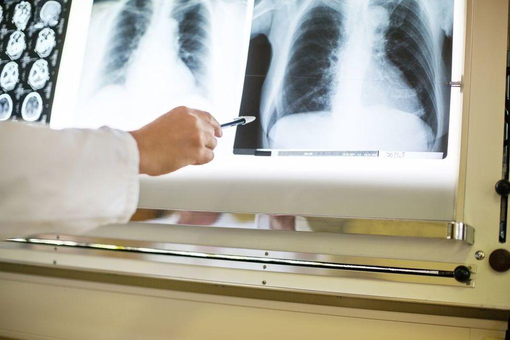 Imagen: Una radiografía de tórax normal no es suficiente para excluir la COVID-19 (Fotografía cortesía de Getty Images).