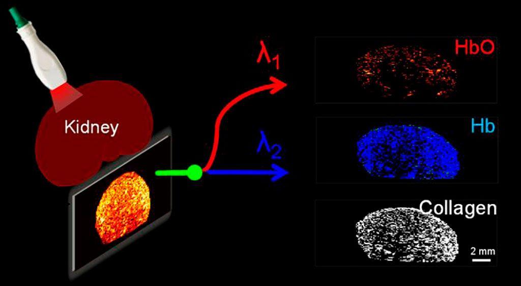Imagen: Las imágenes fotoacústicas pueden revelar la distribución de colágeno en un riñón donado (Fotografía cortesía de JCI Insight)