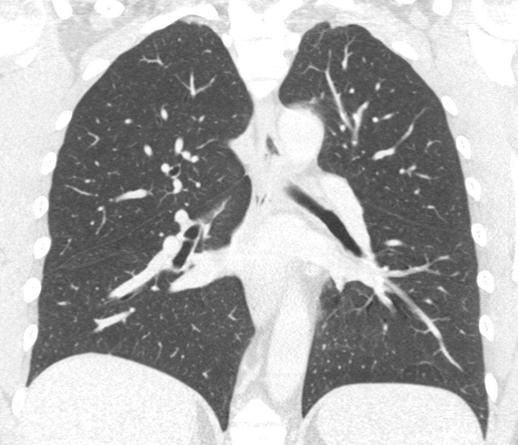 Imagen: Nódulos pulmonares indeterminados en una TC de pulmón (Fotografía cortesía de Optellum)