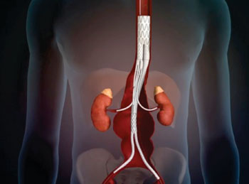 Image: The TAAA Debranching Stent Graft System (Photo courtesy of Sanford Health).