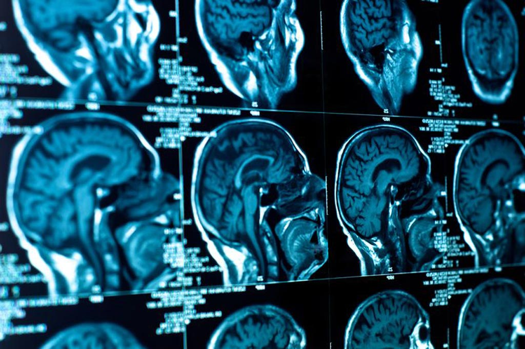 Image: The global portable CT market is expected to grow by 8% by 2021, driven by the increase of neurological disorders and trauma cases (Photo courtesy of Shutterstock).