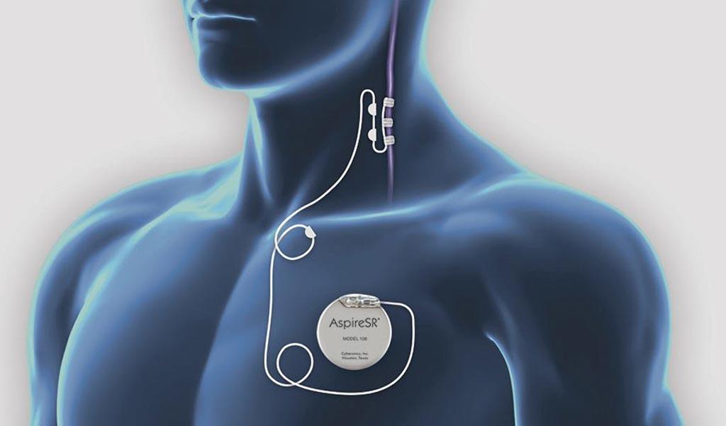 Image: A new study asserts vagus nerve stimulation can speed up stroke recovery (Photo courtesy of LivaNova).