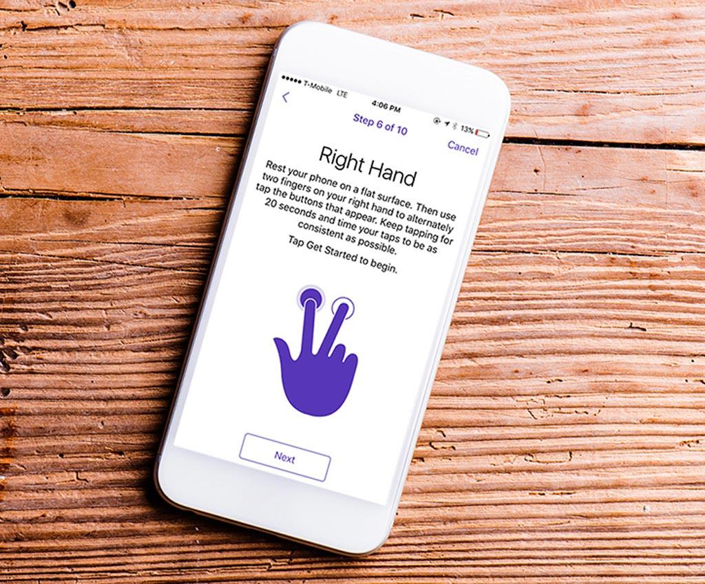 Image: A smartphone app can help score Parkinson's Disease severity (Photo courtesy of URMC).