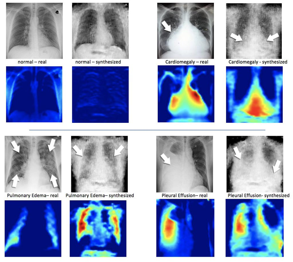 Image: Real X-ray image (L) next to a synthesized X-ray created by DCGAN. Underneath the X-ray images are the corresponding heatmaps (Photo courtesy of Hojjat Salehinejad/MIMLab).