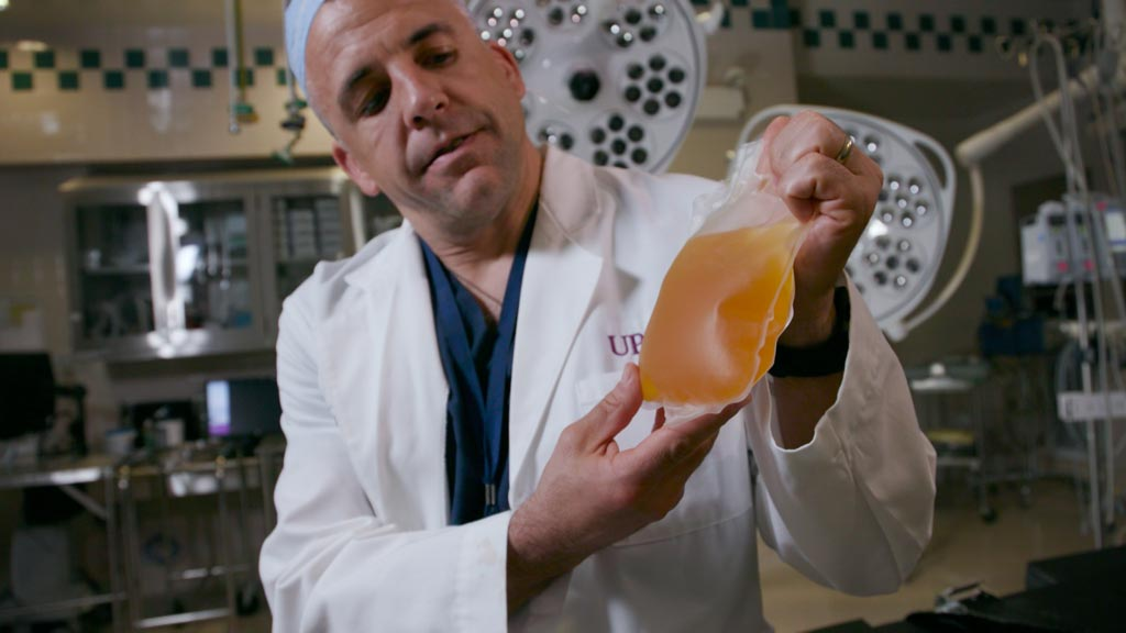 Image: Professor Jason Sperry holding a bag of thawed plasma (Photo courtesy of Tim Betler/UPMC).