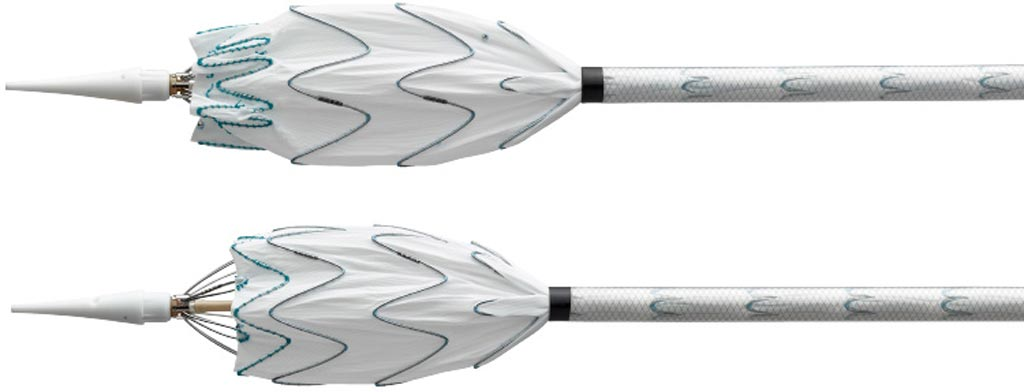 Image: The Valiant Navion thoracic stent graft system (Photo courtesy of Medtronic).