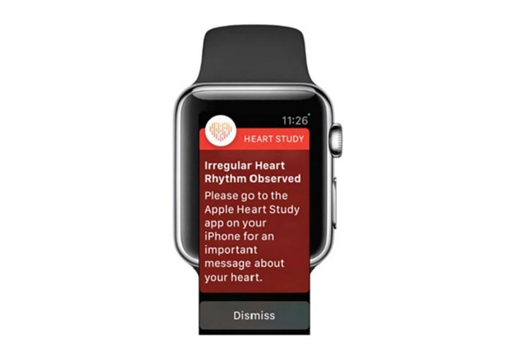 Image: The Apple Watch may soon detect AF and other arrhythmias (Photo courtesy of Stanford University).