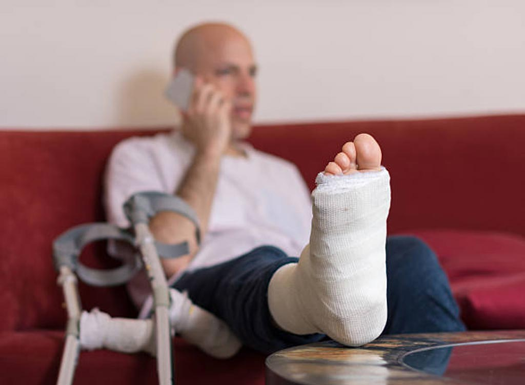 Image: A new study asserts that people who suffer an ankle injury can heal just as well in less cast time (Photo courtesy of iStock).