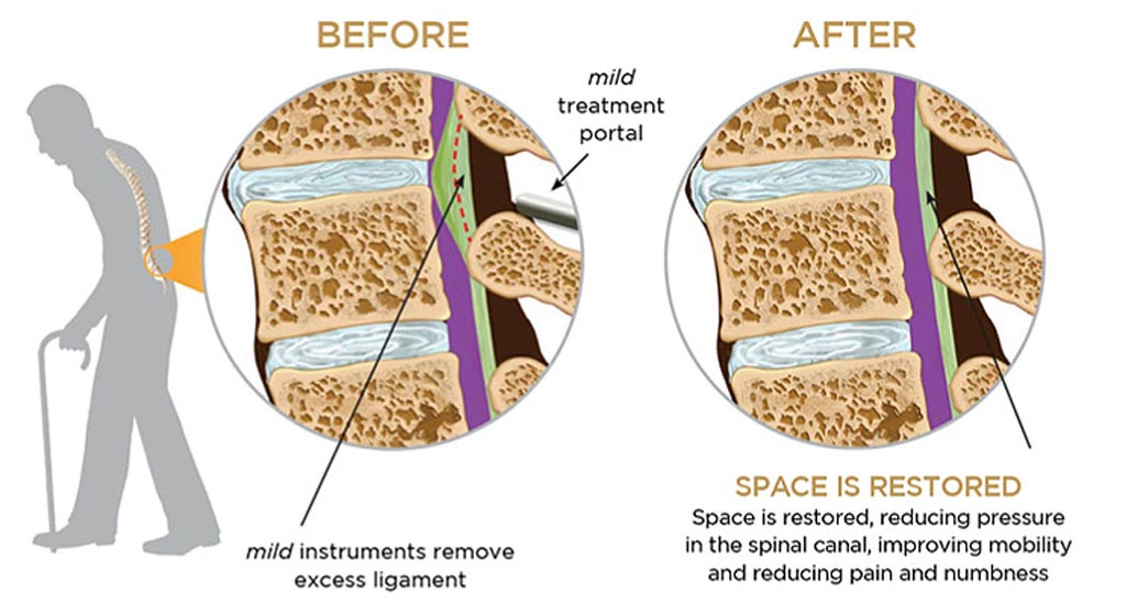 Image: In the spinal procedure, removing excess tissue in the lumbar spine relieves LSS (Photo courtesy of Vertos Medical).