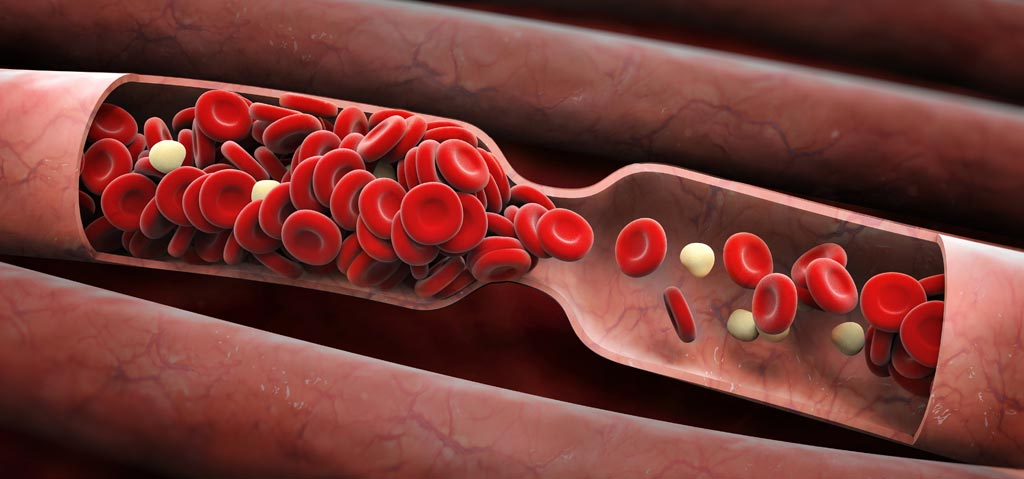 Image: A new study claims blood thinners can reduce potential cardiovascular dangers in HF patients (Photo courtesy of Fotolia).