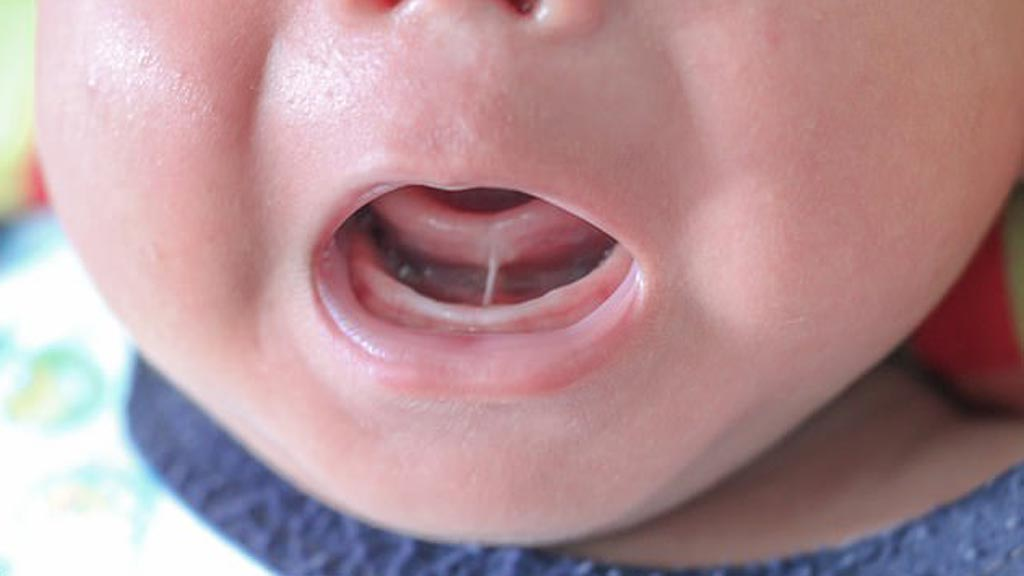 Image: A lingual frenulum can be the cause of breastfeeding problems (Photo courtesy of Shutterstock).