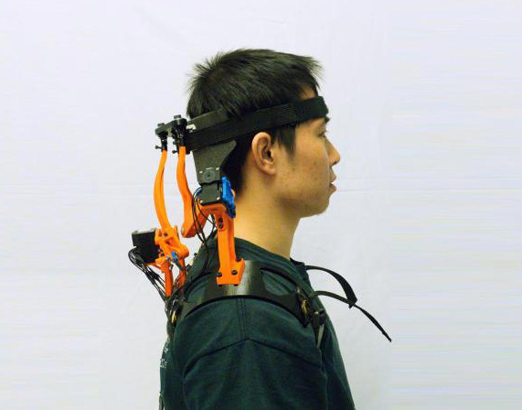 Image: A dynamic neck brace helps ALS patients support their head (Photo courtesy of Columbia University).