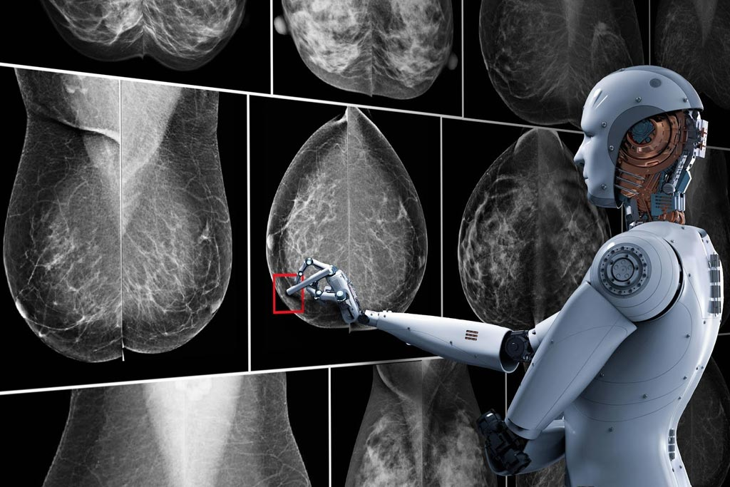 Image: A new artificial intelligence (AI) system could help pathologists read biopsies more accurately, and lead to better detection and diagnosis of breast cancer (Photo courtesy of Getty Images).